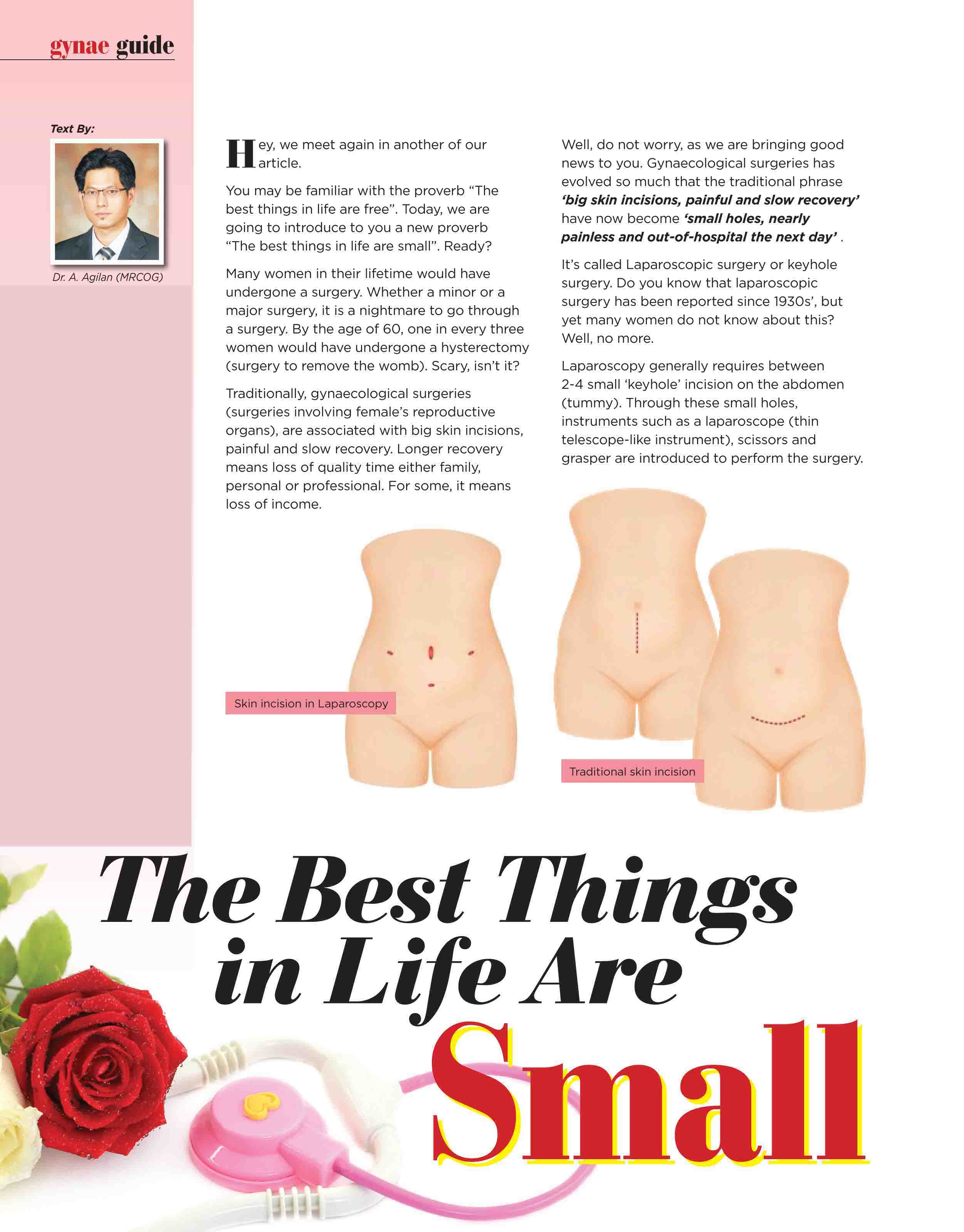 Laparoscopy (Key hole) Surgery (Parenthood Magazine)